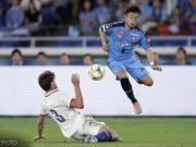 阿隆索:川崎前锋的传接球很出色,他们像支西班牙球队