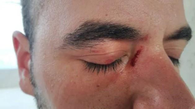 丑恶的悲剧再次轮回,皇家社会球迷在阿诺埃塔攻击马竞球迷
